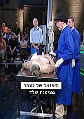 Watch Full Movie - האזמל של גונתר - פציעות שלד - לצפיה בטריילר